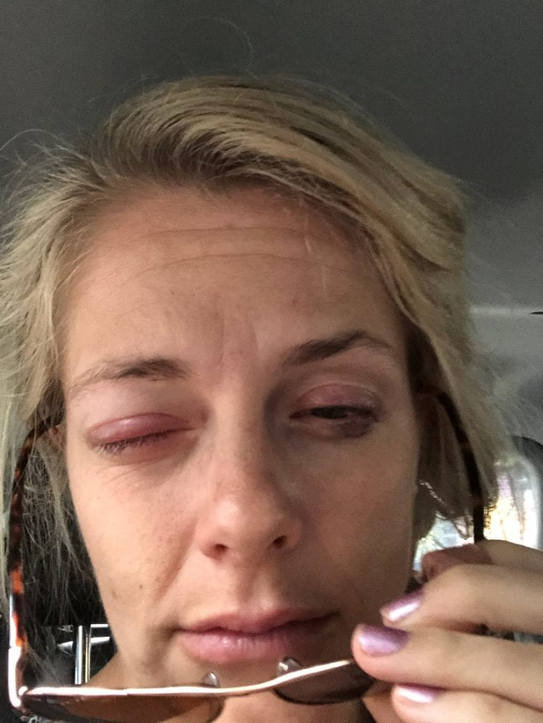 Medical emergency abroad- my swollen eye not being able to open
